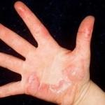 brandwond hand