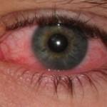 Vuiltje in het oog: de 3 meest voorkomende manieren om het vuiltje te verwijderen