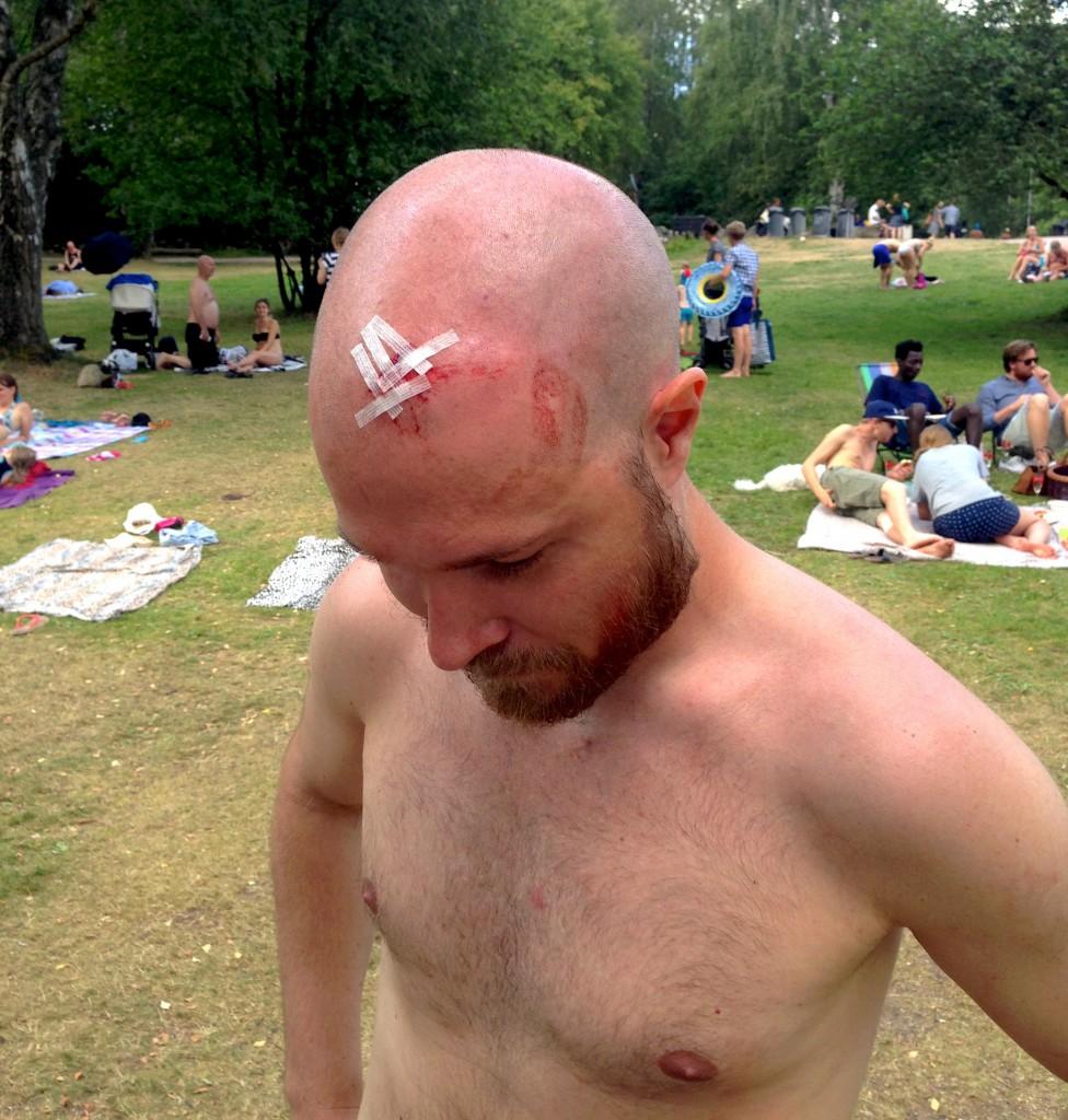 Een nare hoofdwond maar de Zweed hiel er gelukkig geen langdurig letsel aan over.
