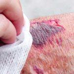verwondingen