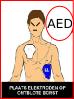 Defibrillator en de kwaliteitskenmerken van de AED