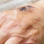 Schaafwond: 9 manieren om de wond te behandelen
