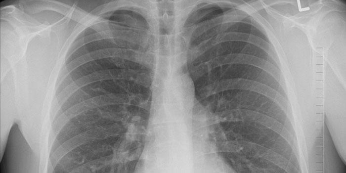 Eerste hulp bij gebroken ribben